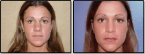 Nose Surgery in Virginia Beach, VA | Virginia Surgical Arts