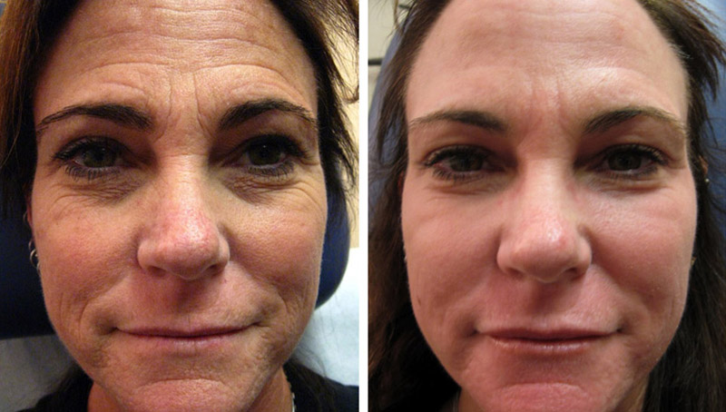 Ablative & Non-ablative Laser Skin Resurfacing in Virginia Beach, VA | Virginia Surgical Arts