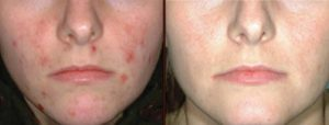 IPL Rosacea and Acne Treatment in Virginia Beach, VA | Virginia Surgical Arts