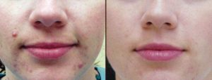 IPL Rosacea and Acne Treatment in Virginia Beach, VA | Virginia Surgical Arts
