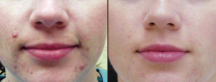 Ipl Rosacea And Acne Treatment Virginia Surgical Arts