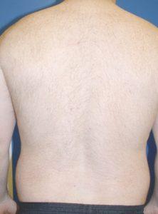 Laser Hair Removal in Virginia Beach, VA   Virginia Surgical Arts