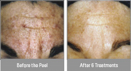 Vitalize Peel® in Virginia Beach, VA | Virginia Surgical Arts