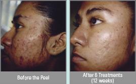 Vitalize Peel® in Virginia Beach, VA   Virginia Surgical Arts
