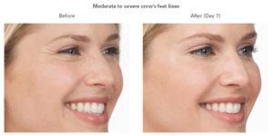 Botox® in Virginia Beach, VA | Virginia Surgical Arts