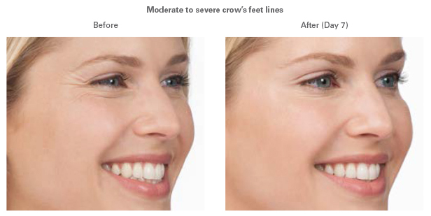 Botox® in Virginia Beach, VA | Virginia Surgical Arts