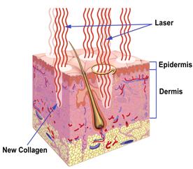 Ablative Skin Resurfacing in Virginia Beach, VA | Virginia Surgical Arts