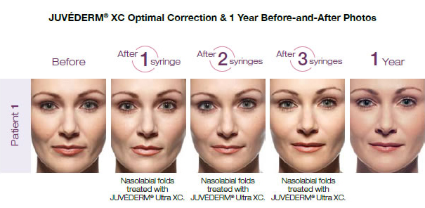 Juvederm XC Before and After Photos