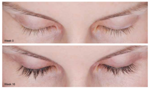 Latisse® Eyelash Growth in Virginia Beach, VA | Virginia Surgical Arts