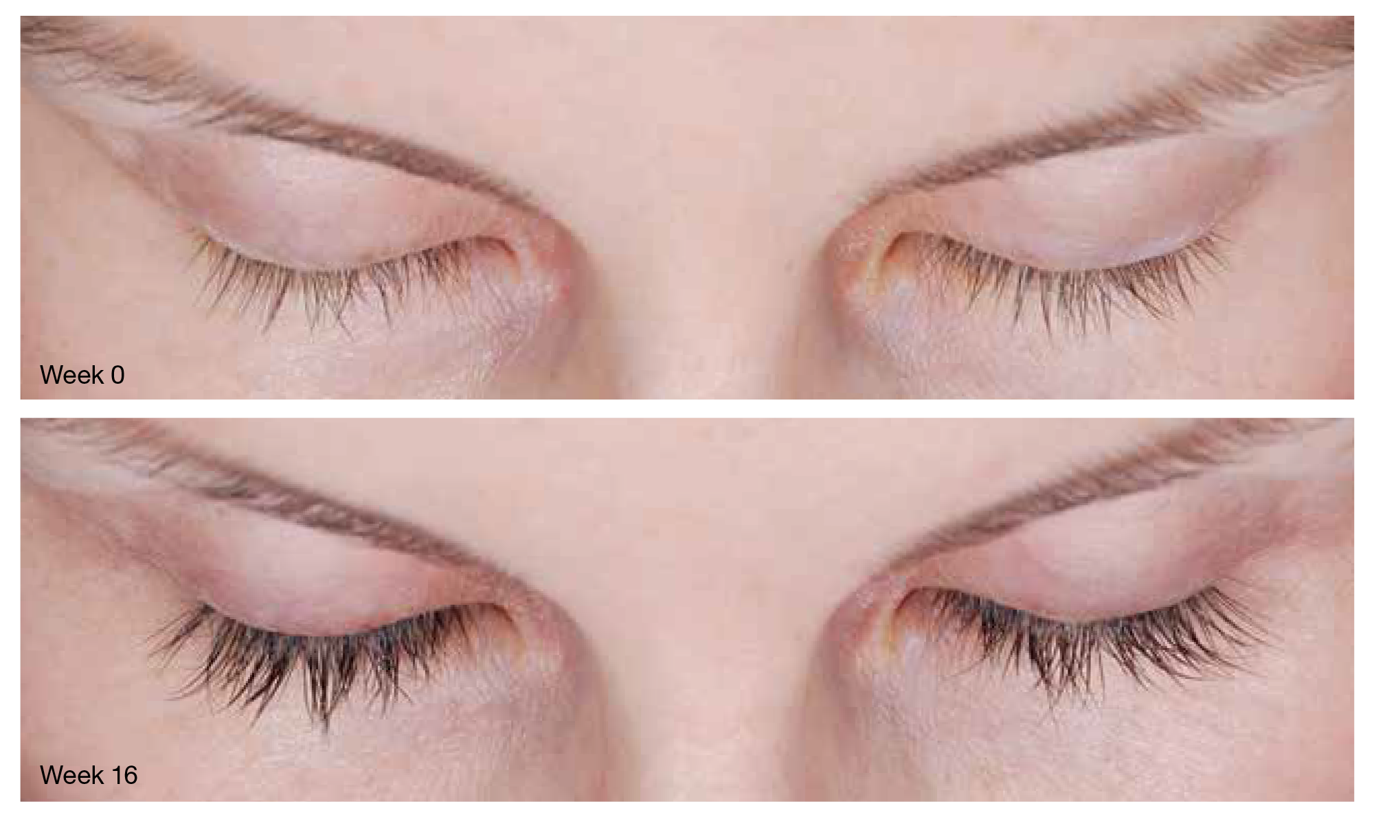 Latisse Eyelash Growth Cosmetic Surgery In Virginia Beach Va