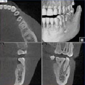 Teeth-In-A-Day™ in Virginia Beach, VA   Virginia Surgical Arts