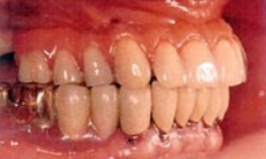 Teeth-In-A-Day™ in Virginia Beach, VA | Virginia Surgical Arts