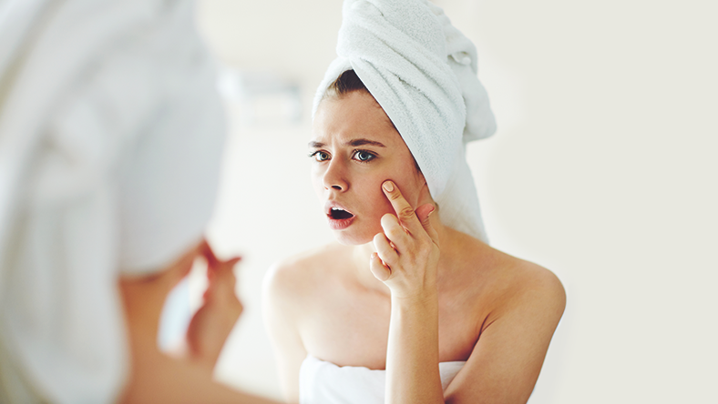 Did You Know? Hormones May Be the Cause of Your Acne