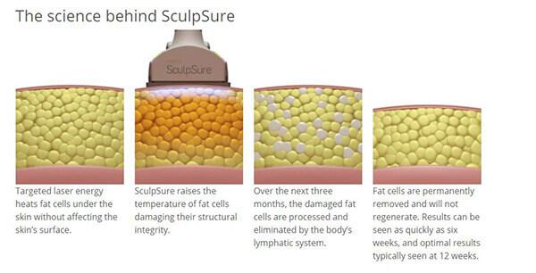 SculpSure® FAQ's in Virginia Beach, VA   Virginia Surgical Arts