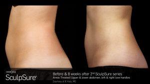 SculpSure® FAQ's in Virginia Beach, VA | Virginia Surgical Arts