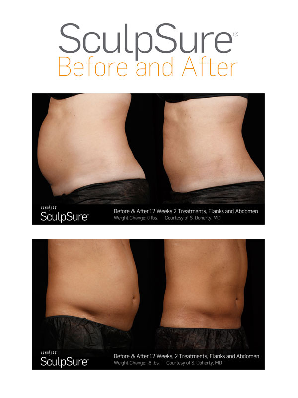 SculpSure vs. CoolSculpting in Virginia Beach, VA | Virginia Surgical Arts