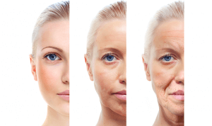 "How to ""ACE"" Anti-Aging in Virginia Beach, VA | Virginia Surgical Arts"
