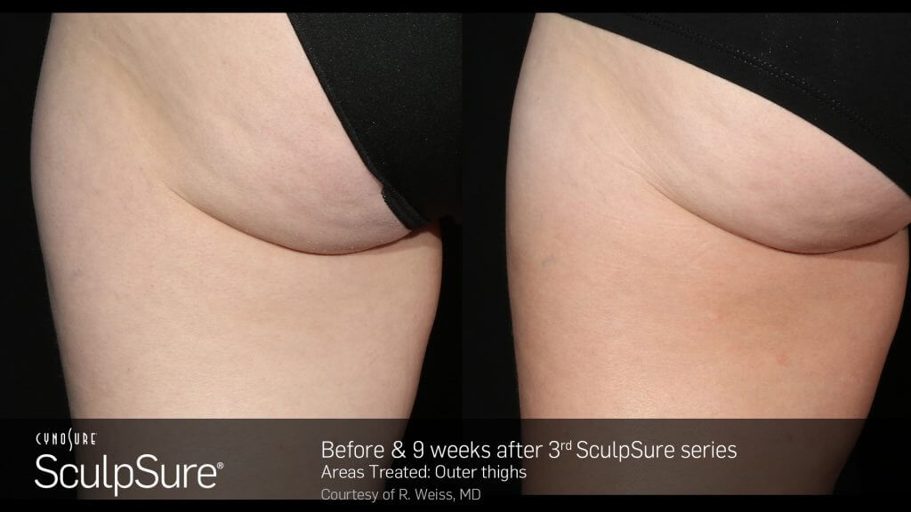 BA_SculpSure_R.Weiss_OuterThigh_3tx_9weeks