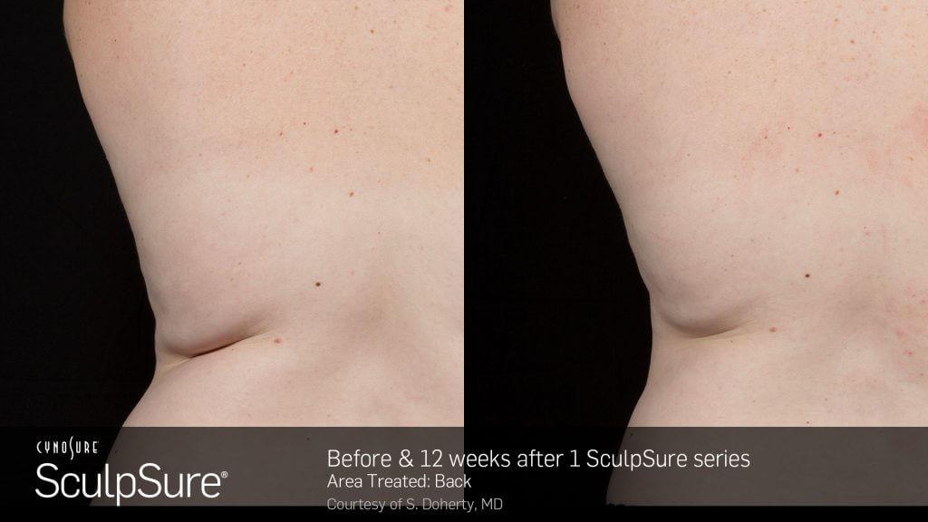 SculpSure® in Virginia Beach, VA | Virginia Surgical Arts
