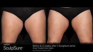SculpSure® Gallery in Virginia Beach, VA   Virginia Surgical Arts