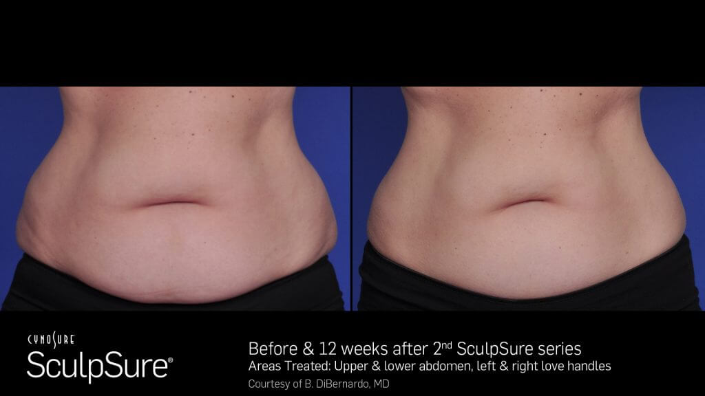 SculpSure® Gallery in Virginia Beach, VA | Virginia Surgical Arts