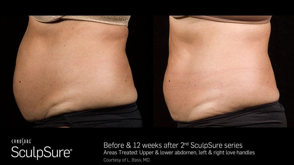 SculpSure® Gallery in Virginia Beach, VA | Virginia Surgical Arts