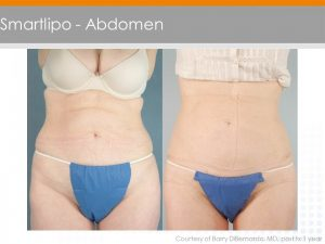 Laser Liposuction by Dr. Vendetti