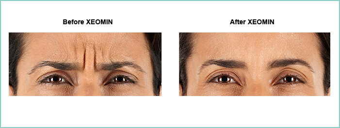 Xeomin 174 Frown Line Treatment Virginia Surgical Arts