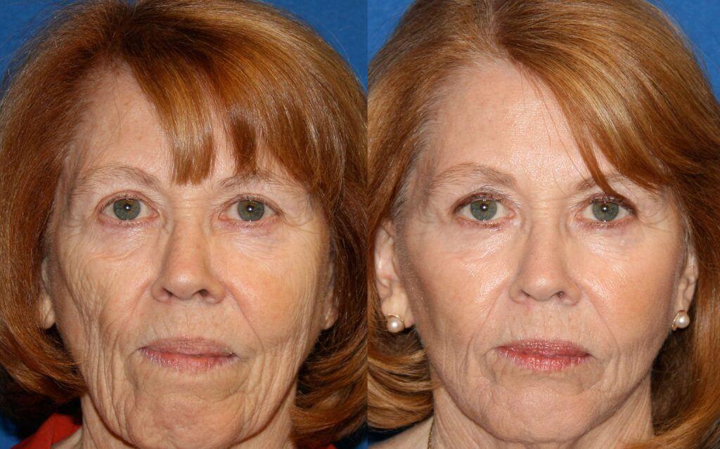 Fat Grafting01 - Cosmetic Surgery In Virginia Beach, Va -5626