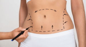 Smartlipo®: The Truth About Liposuction