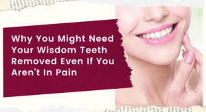 Why You Might Need Your Wisdom Teeth Removed Even If You Aren't In Pain