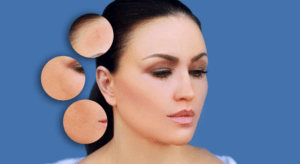 Treatment Options for Dark Spots